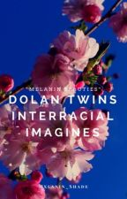 Dolan Twins Interracial Imagines #wattys2017 by Mxlanin_Shade