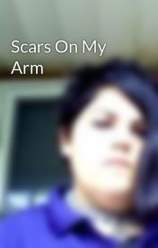 Scars On My Arm by DarkAbyss1990