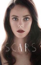 Scars (Remus Lupin)  by AlexGomezG