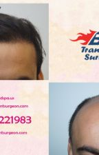 Do You Know Everything about Hair Transplant by besthairsurgeon