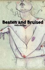 Beaten and Bruised - calm -  by KellicxKilljoy