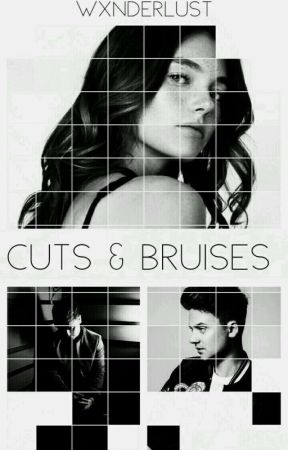 Cuts & Bruises | ON-GOING by mylittlewanderwall