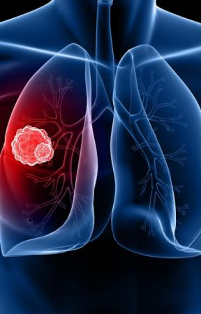 Analyzing the trends and forecasting Global Lung Cancer Therapeutics Market by divyarachel12