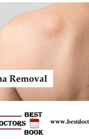 Lipoma Removal Cost in Hyderabad | Lipoma Doctor in Hyderabad - Wattpad