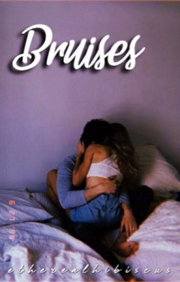 Bruises (OLD)