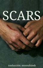 Scars • Grayson Dolan •  ESPAÑOL TERMINADA by moonshineb