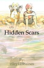 hidden scars by riley123baines