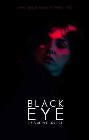 Black Eye by foreversmilin