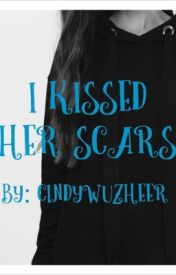 I Kissed Her Scars by cindywuzheer