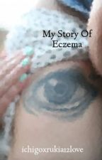 My Story Of Eczema by ichigoxrukia12love