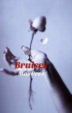 Bruises-(Maxpres) by Writer_Shiz