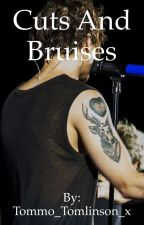 Cuts and Bruises - a 1D fanfic by Tommo_Tomlinson_x