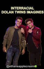 INTERRACIAL DOLAN TWINS IMAGINES (BWWM) by ethansapplecream