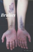 Bruises// Billy Hargrove  by high_fukx