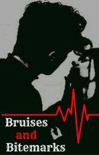 Bruises and Bitemarks by Amnesiane