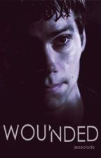 Wounded (Dylan O'Brien / Completed) #wattys2015 by jessclods