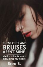 These Cuts and Bruises Aren't Mine by musicallyaddicted-