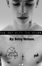 The Boy With The Scars by EveryoneDreams