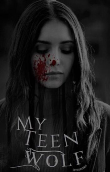 My Teen Wolf.  {1}