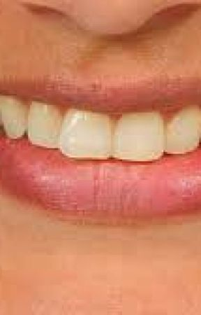 Whiter Teeth Peroxide