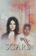 SCARS (Jesse lingard) by tudopassa_xxx