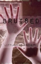 BRUISED by LittleMissHorovedy