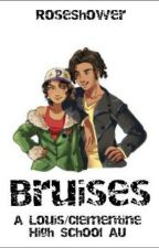 Bruises - Louis/Clementine by RoseShower