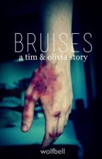 Bruises by wolfbell