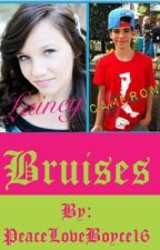 Bruises (Cameron Boyce Love Story) by xxPrincessArianaxx