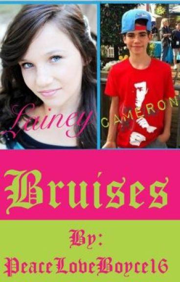 Bruises (Cameron Boyce Love Story)