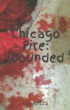 Chicago Fire: Wounded by curlykb123