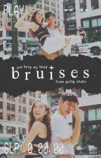 bruises (sean & kaycee) by mickeyeun