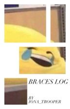 Braces Log by iona_trooper