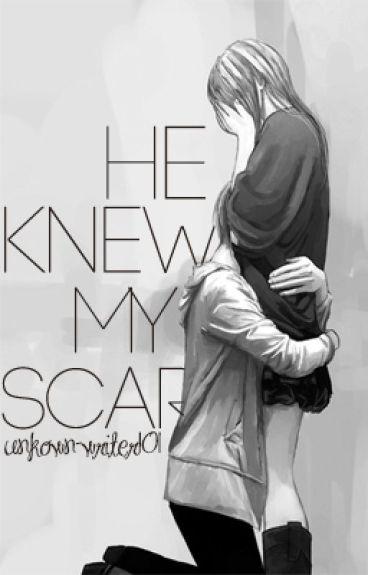 He Knew My Scars
