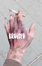 Bruised    B. U. AU    by PANICatthecafe