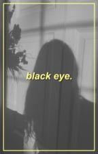 black eye,    nic hamilton! by voidoleff