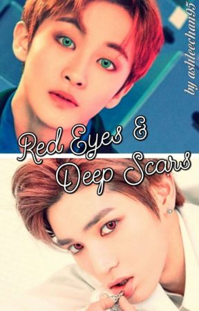 Red Eyes & Deep Scars ||Markyong|| by ashleechan95