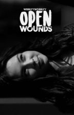 Open Wounds ↮ Isaac Lahey by wibblyywobblyy