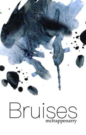 bruises || stylinson by lullabiesnjh