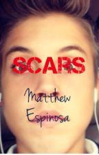 Scars || Matthew Espinosa by mattycat