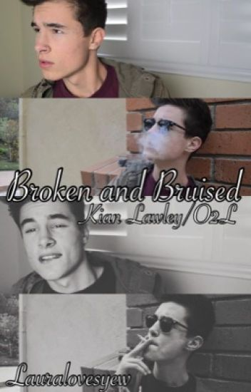 Broken and Bruised-Kian Lawley/O2L