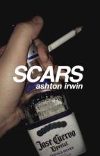 scars ☹ ashton irwin by the_apple_eater