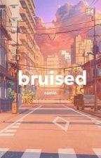 bruised || nomin by uwujaemins
