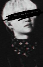 Scars are part of you - Yoonmin - ff by Babe_without_name