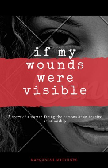 If My Wounds Were Visible