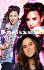 Bruises [Dutch&Demi Lovato Fanfic] by xDemislovaticx