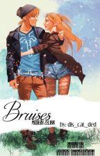 Bruises- Modern Zelink by dis_cat_ded