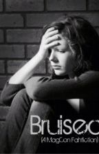 Bruised ( a MAGCON fanfiction) by supersyd223