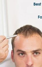 Fighting Baldness With Hair Transplant Procedures by avenues12