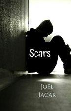 Scars by Joelwritesstories